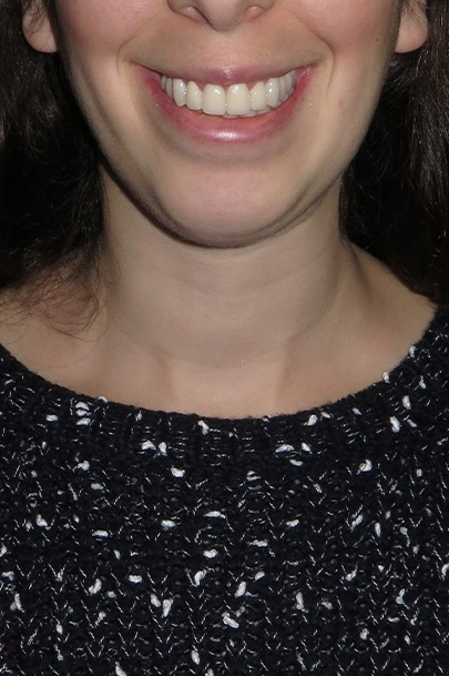 Patient's smile after teeth whitening and orthodontics