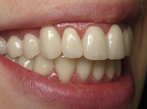 Patient's smile in profile after teeth whitening and orthodontics