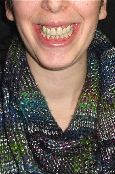 Patient's smile before teeth whitening and orthodontics