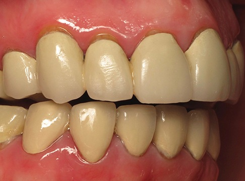Patient's smile in profile before teeth whitening and orthodontics