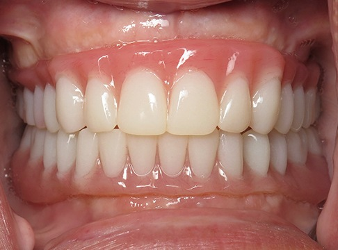 Closeup of Cynthia before dental implants