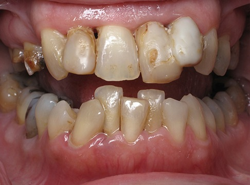 Closeup of Cynthia's before dental implants