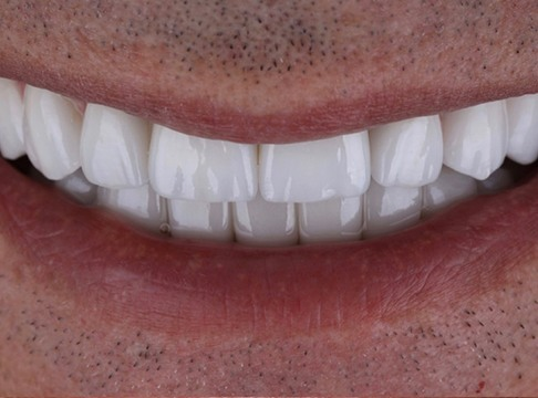 Closeup and Ted's smile after dental implants