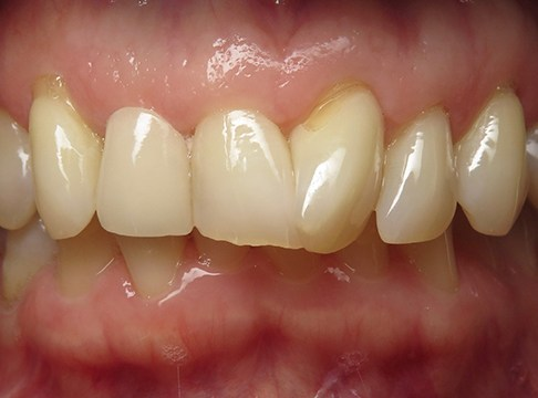 Closeup of Sandy's smile before dental implants