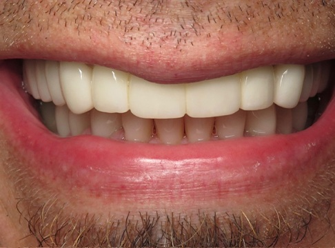 Closeup of Sean's smile after dental implants