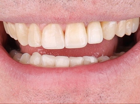 Closeup of Trent's smile after dental implants