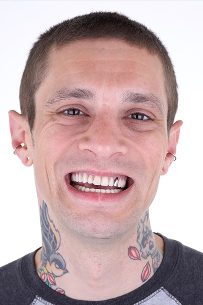 Craig after dental implants
