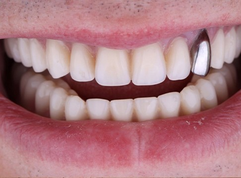 Closeup of Craig's smile after dental implants