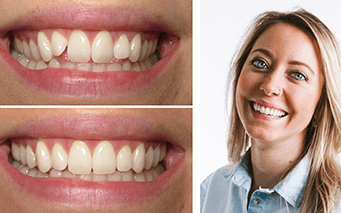 Before and after Invisalign smile example