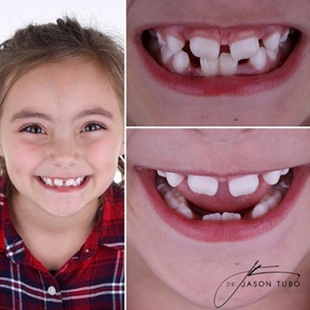 Real patient's smile before and after fluoride treatment