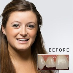 Young woman before and after dental treatment