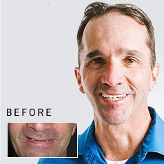 Man's smile before and after tooth replacement