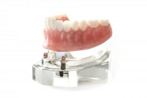 Close-up of a model of an implant denture